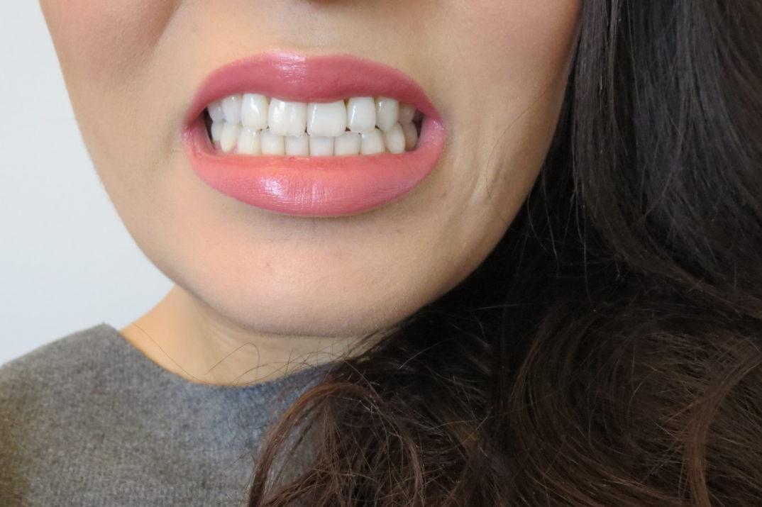 Je Porte Un Appareil Dentaire Parisienne Mp